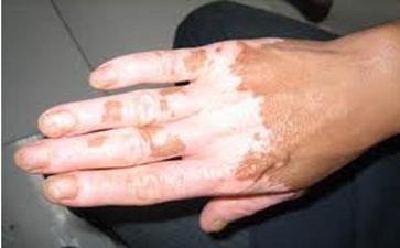 手指部位患白癜风是什么原因